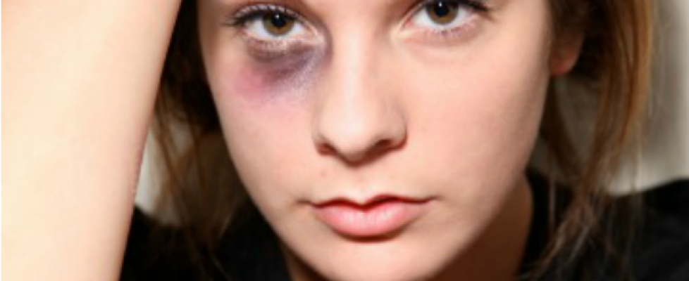 Have you faced domestic violence? Speak to a Solicitor online now